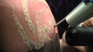The Tattoo Removal Process