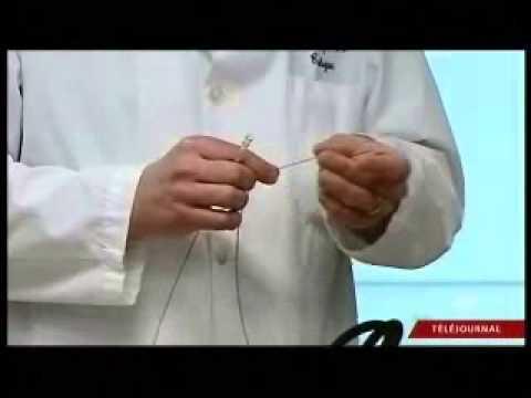 Les médicaments à la varicosité et la phlébite