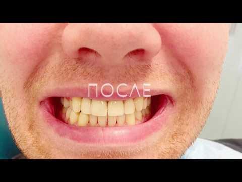Виниры в Перми, установка в стоматологии Эстет