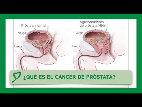 Kostengünstige und effektive Medikamente aus Prostatitis