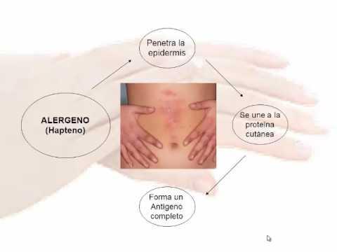 Enterosorbenty a la psoriasis