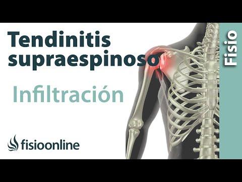 Artrosis de los 3 grados remedios populares articulación de la rodilla