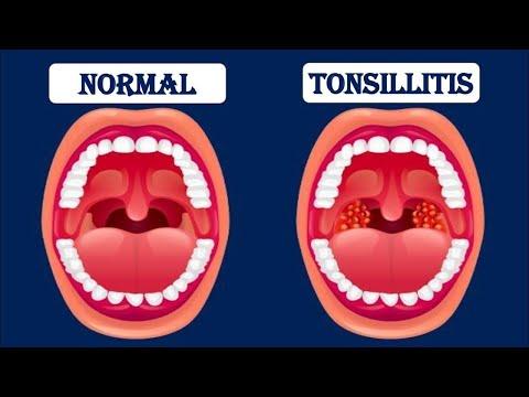 Giardiasis treatment in humans