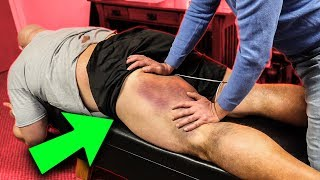 HAMSTRING UPDATE AND THERAPY