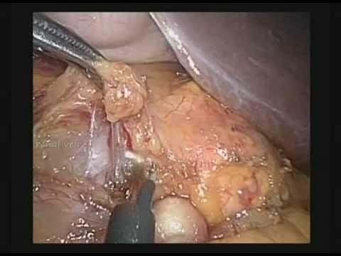 Laparoscopic left adrenalectomy (HD quality)
