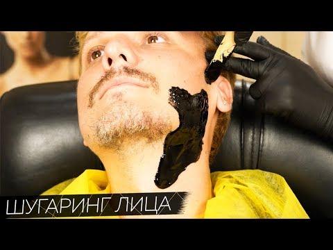 Шугаринг лица МУЖЧИНЕ от Яны Осадчей