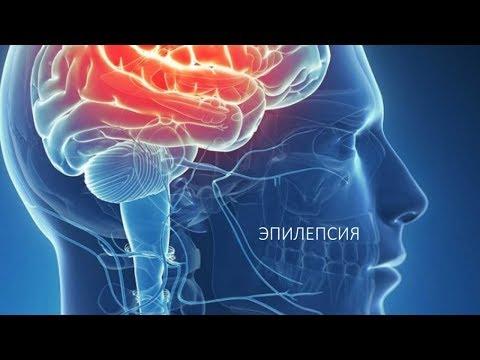 Эпилепсия - причины, симптомы и диагностика