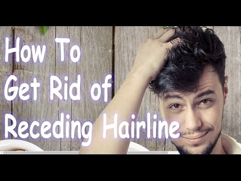 Video How To Get Rid of Receding Hairline - Natural Hairline Receding Treatment