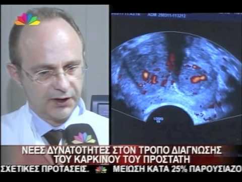 Ορχεκτομή για πρόγνωση καρκίνου του προστάτη
