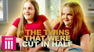 The Twins That Were Cut In Half | Living Differently