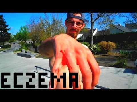 Crema per pelle secca di mani a eczema