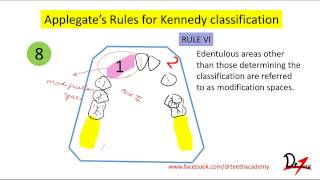 Kennedy's classification, Applegate's rules- Easy!