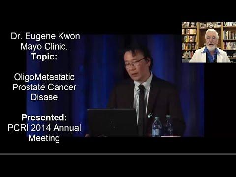 Brachiterapia HDR per il cancro alla prostata
