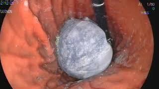 Mide balonu takılması videosu
