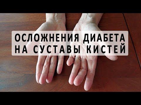 Осложнения на суставы кистей и рук при диабете
