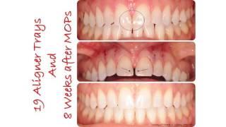 Dental Treatment: Accelerated Orthodontics Jun 6, 2017