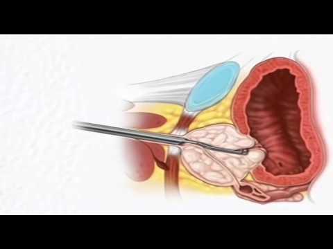 После операцию аденома предстательной железы