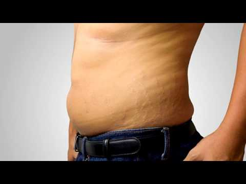 Varicosity di punture di trattamento di gambe