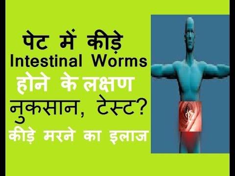 Népi gyógyszer a paraziták eltávolítására