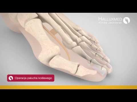 Koślawego deformacja kości w nogach