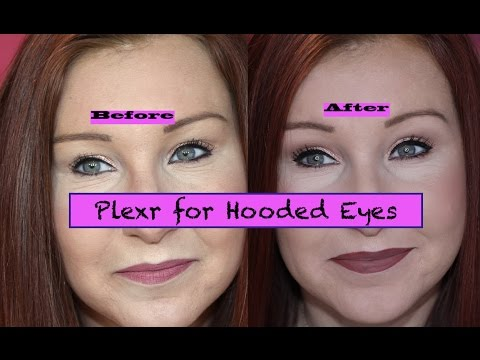 Diary of Plexr Treatment for Hooded Eyes - Part 3 - Results! Non surgical Blepharoplasty?