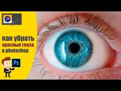 Лазерное коррекция зрения в тольятти