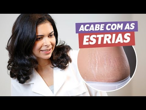 Imagem ilustrativa do vídeo: COMO ACABAR COM AS ESTRIAS