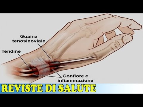 Esercizio con dolore alle articolazioni del ginocchio