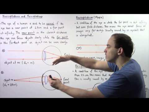 Hogyan javíthatjuk a látást szürkehályoggal