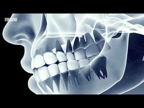 Osteochondrose einer zervikalen Abteilung, wie am besten zu behandeln