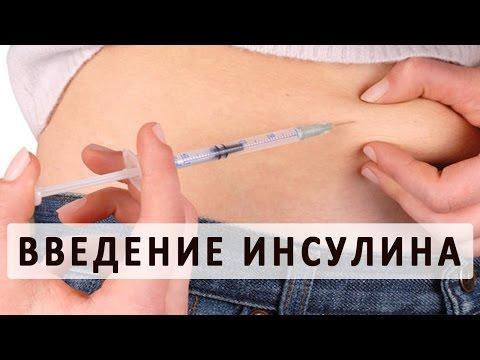 Чем наиболее эффективно снизить сахар в крови