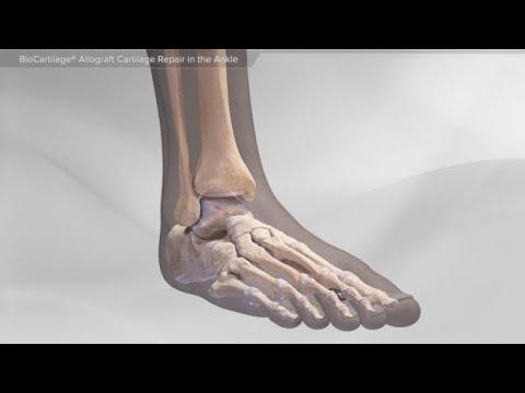 Farmaci per il trattamento del mal di schiena