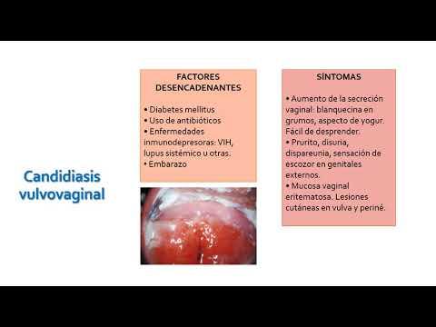 Diverse boli articulare
