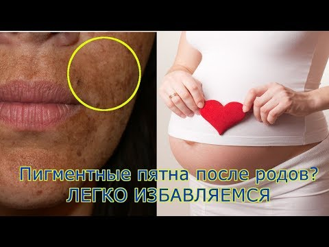 Пигментные пятно на лице и на руке.
