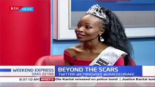 The story of Bernice Nissi, beauty queen who lost her mum at 10; battled depression|BEYOND THE SCARS