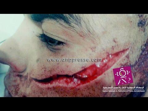 ضحية عصابة الطاكسي يطالب بإنصافه