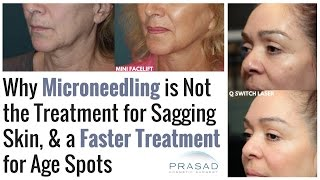 Why Microneedling Does Not Lift Sagging Skin or Treat Age Spots, and Treatments for Both Issues
