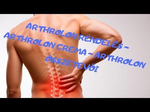 Hogyan kezeljük az artritisz kezelését