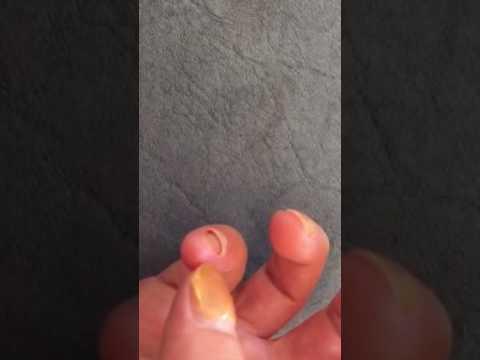 Chi tratta funghi su unghie