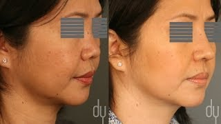 Asian Rhinoplasty | Before & After | Diced Cartilage Fascia (DCF) - Beverly Hills