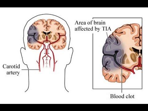 Die Rate der Blutzuckerspiegel bei Jugendlichen 14