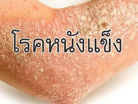 โรคสะเก็ดเงิน celandine อาบน้ำ