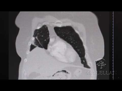 Anterior Thoracic Lung Herniation and Repair