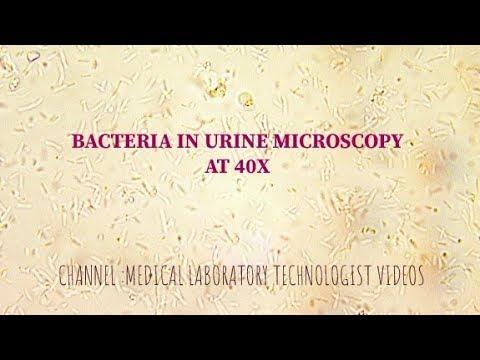 Hpv papilloma virus trasmissione