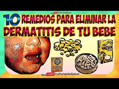 Las medicinas de kitaya para el tratamiento de la psoriasis