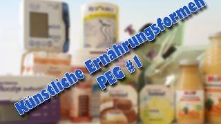 PEG #1 - Künstliche Ernährungsformen