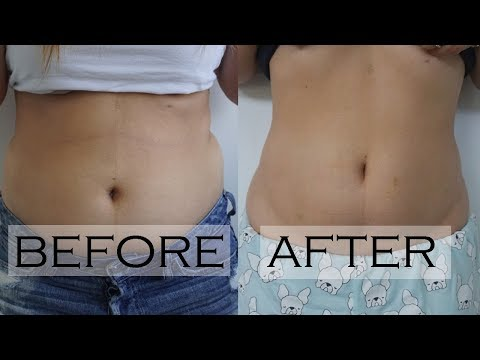Froze My Belly Fat Using Coolsculpting - See The Before & After!