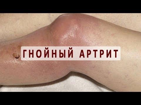 Что такое гнойный артрит?