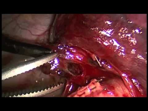 Minimally Invasive Thoracic Surgery: Lingulectomy