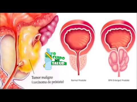 Ist Zuordnung möglich, Prostatitis
